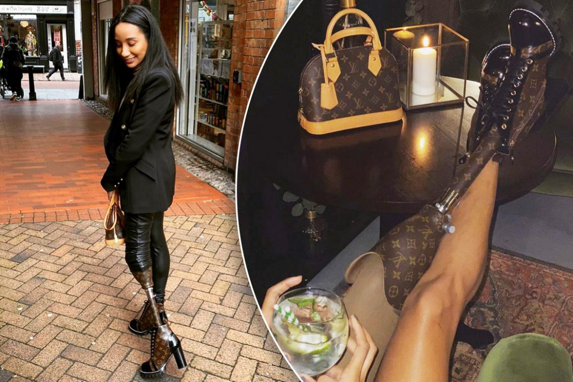 An NY model who lost her leg to an accident has made a prosthetic limb from a Louis Vuitton bag : Luxurylaunches